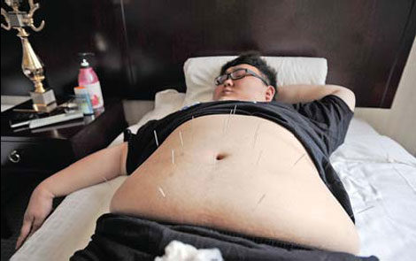 How acupuncture helps in weight loss