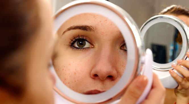 10 Pretty Simple Home Remedies for Acne that work!