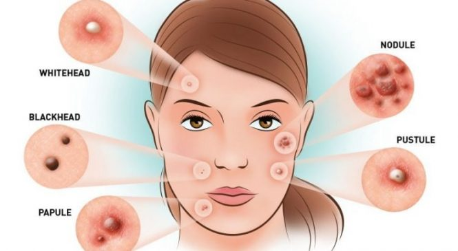 Cedars Dermatology Acne Vulgaris Treatment