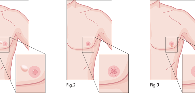 Male Breast Cancer Signs, Symptoms, Treatment