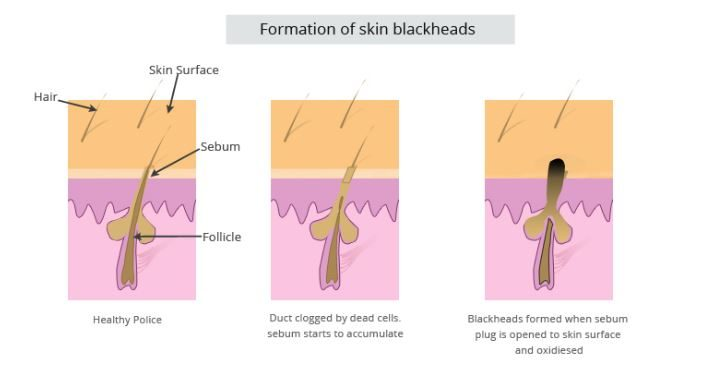 Formation-of-blackhead