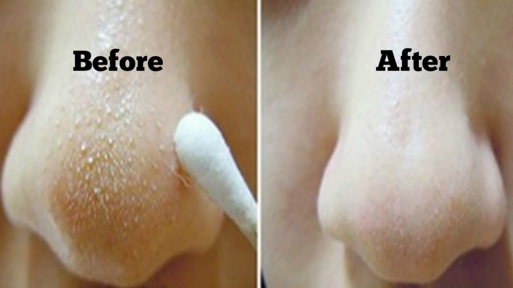 how to clear your skin of blackheads