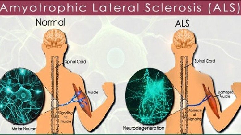 Als diagnosis and treatment for Motor neurone disease signs and symptoms