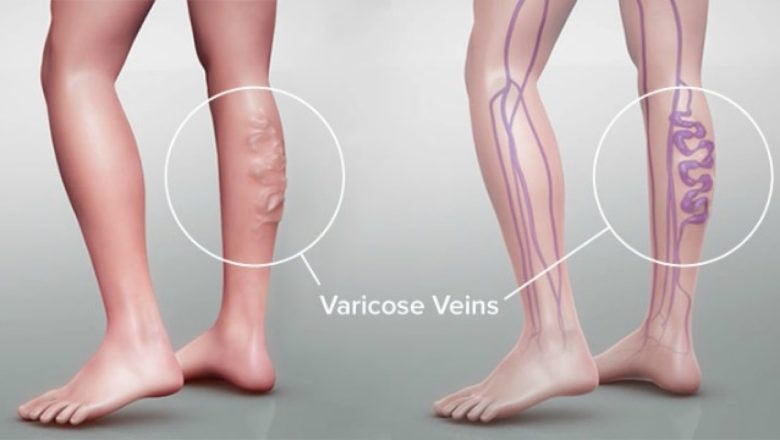 Varicose Vein Treatment: Are Your Compression Stockings Itchy?