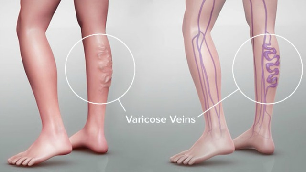 8ed0117e6c Varicose Vein : Are Your Compression Stockings Itchy?