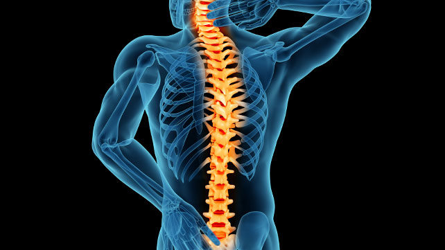 Why is MRI needed for lumbar back pain