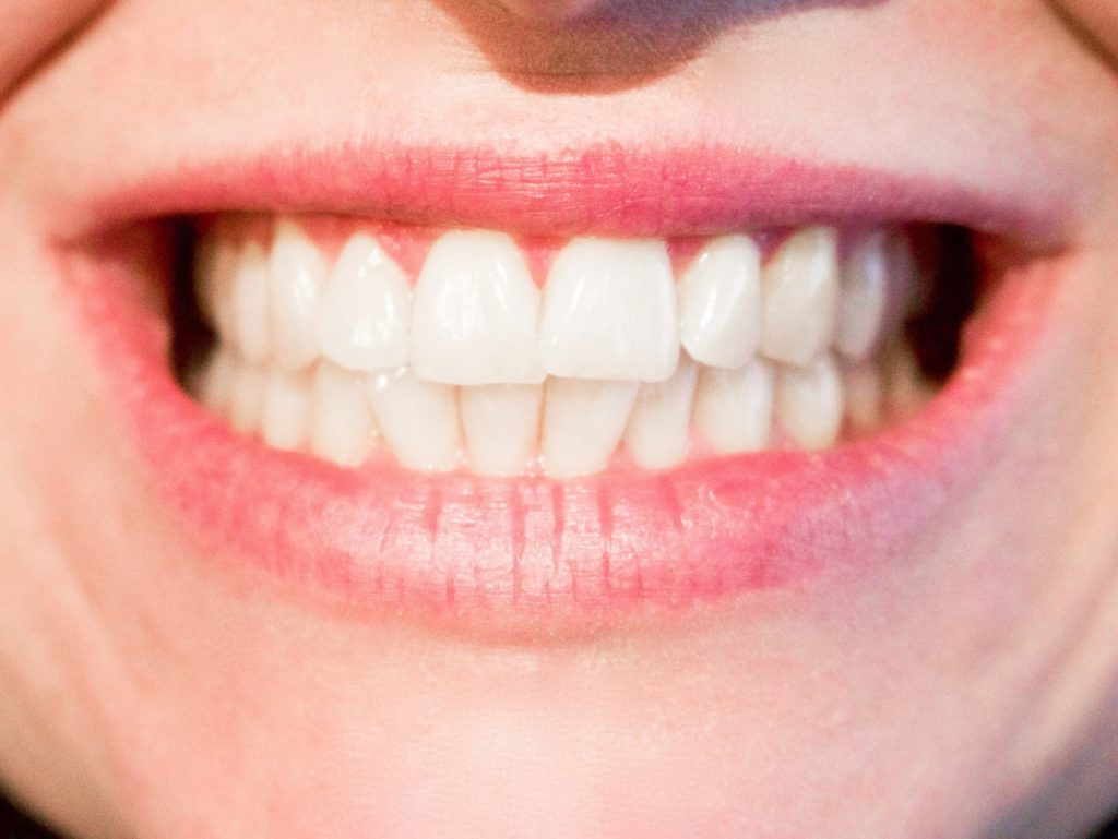Ceramic Braces and Whether They are Best for You