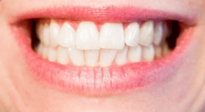 Your Top Guide to Clear or Ceramic Braces and Whether They are Best for You