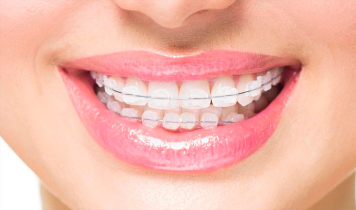 Ceramic-braces-Teeth
