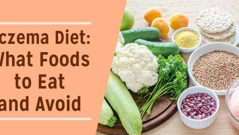 How eczema can be treated through proper diet