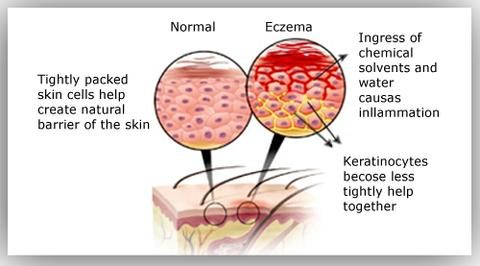 Types of hand eczema. Is it different from underarm rash