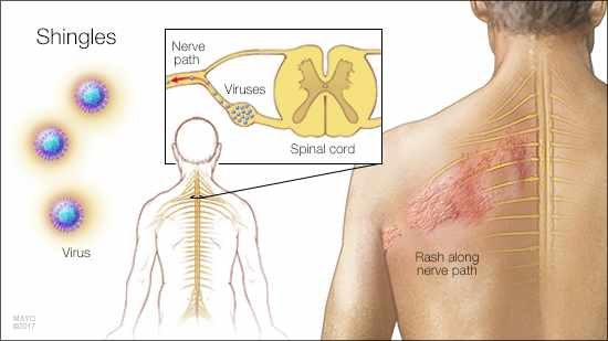 Zostavax Vaccine Things to Know Before You Get the Shingles Vaccine