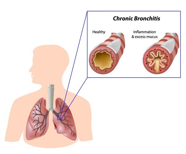 Chronic bronchitis What Is COPD and how can you treat it?