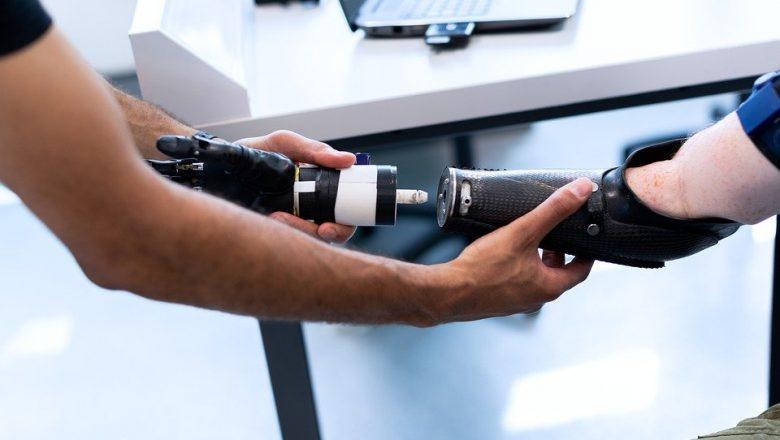 The Next Steps in Bionic Limb Development